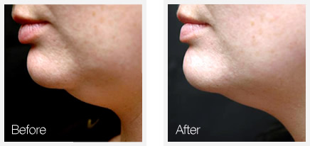 Strawberry Laser Lipo Chin Reduction at Allure Clinic ...